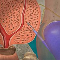 Биопсия при съмнение за рак на простатата – медицинско изследване, при което се взима тъканна проба