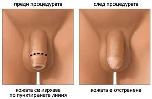 Обрязване или циркумцизия - алтернатива при тежка степен на фимоза