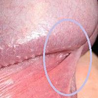 Френулотомията е оперативно лечение при мъжете с френулум бреве, което се среща при около 20% от популацията.