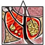 Лечение на рак на простатата
