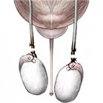 Вазектомия. Мъжки стерилитет.