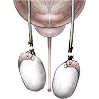 Вазектомията е процедура, при която по хирургичен път се съединяват семепроводите и се прекъсва оплодителната способност на мъжа