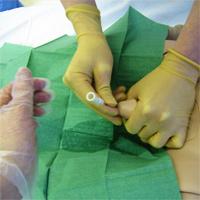 Манипулация по поставяне на гъвкав силиконов катетър, който да облекчи състоянието на пациент, задържащ урина.