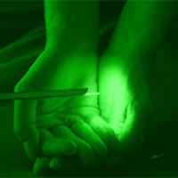 Простатна лазерна хирургия