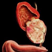 Може ли увеличената простата да се превърне в рак?