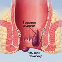 Хемороиди - разширени и препълнени с кръв анални кръвоносни съдове.