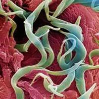 Ентеробиоза - заболяване, причинено от заразяване с острици или глисти.