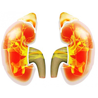 Протеинурията представлява повишено съдържание на белтък в урината, което е симптом за патология на бъбреците.