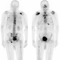 Метастази при рак /простатен карцином/