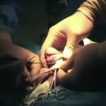 Лазерно обрязване при фимоза