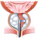 Трябва ли да се оперира увеличена простата?