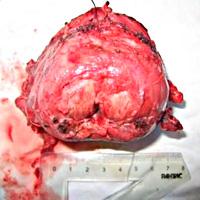 Диагностика и лечение при рак на простатна жлеза. Заблуди и истини за простатния карцином.