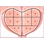 Усложнения след биопсия на простатната жлеза