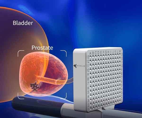 Transperineal Prostate Biopsies